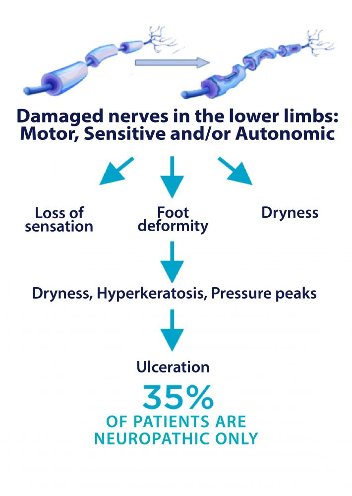 neuropathic symptoms and progress
